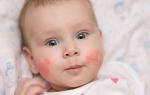 Как выявить аллергию у ребенка