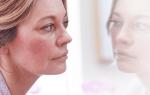 Как убрать покраснения на лице