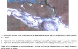 Что такое гладкая мышечная ткань