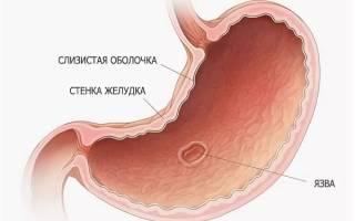 Какие симптомы язвы желудка